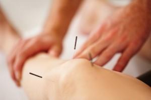 Intramuscular Stimulation Calgary Clinics