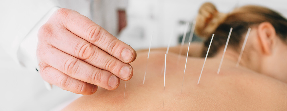 An acupuncturist inserts a number of needles into a patient's back