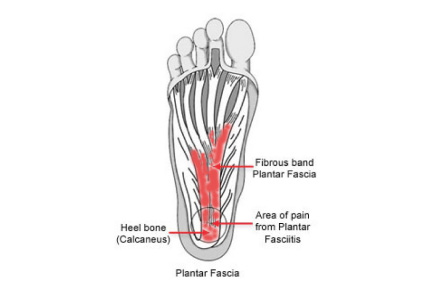 A diagram showing where pain in the plantar fascia is located in plantar fasciitis