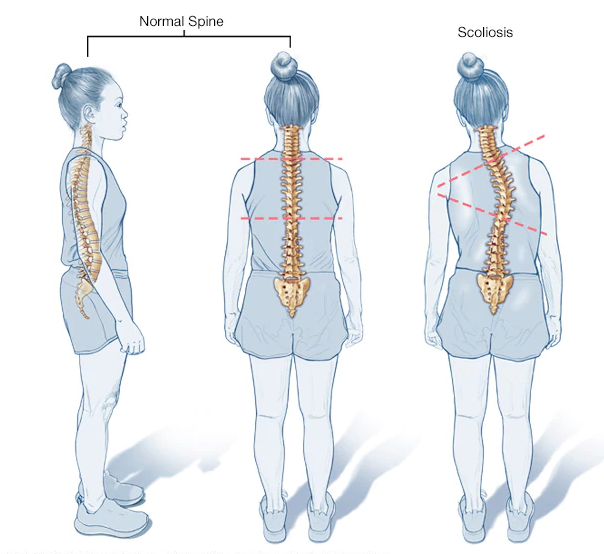 3 images showing a normal spine and a scoliotic spine from the side and the back